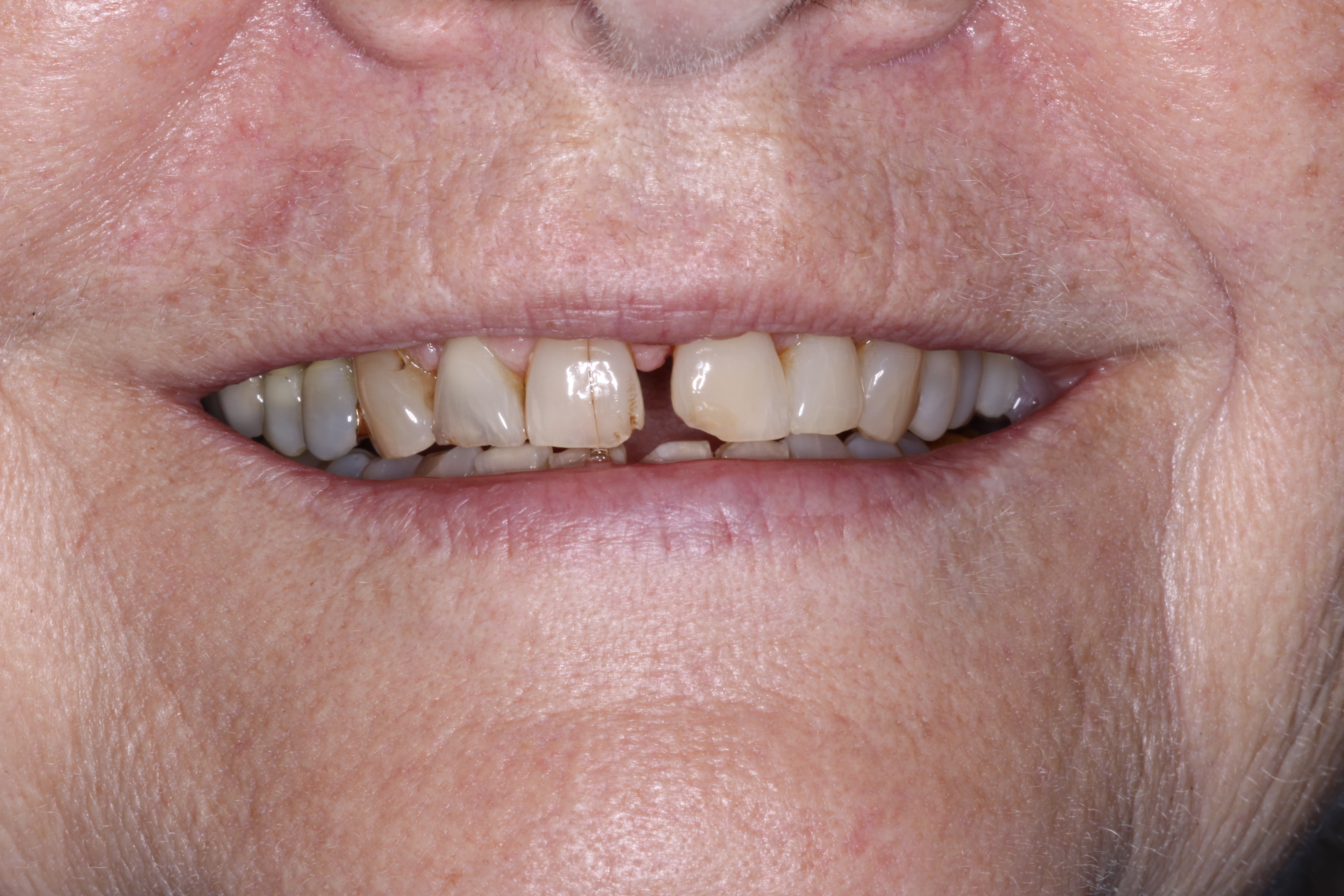before photo of upper front teeth showing large gaps and stains