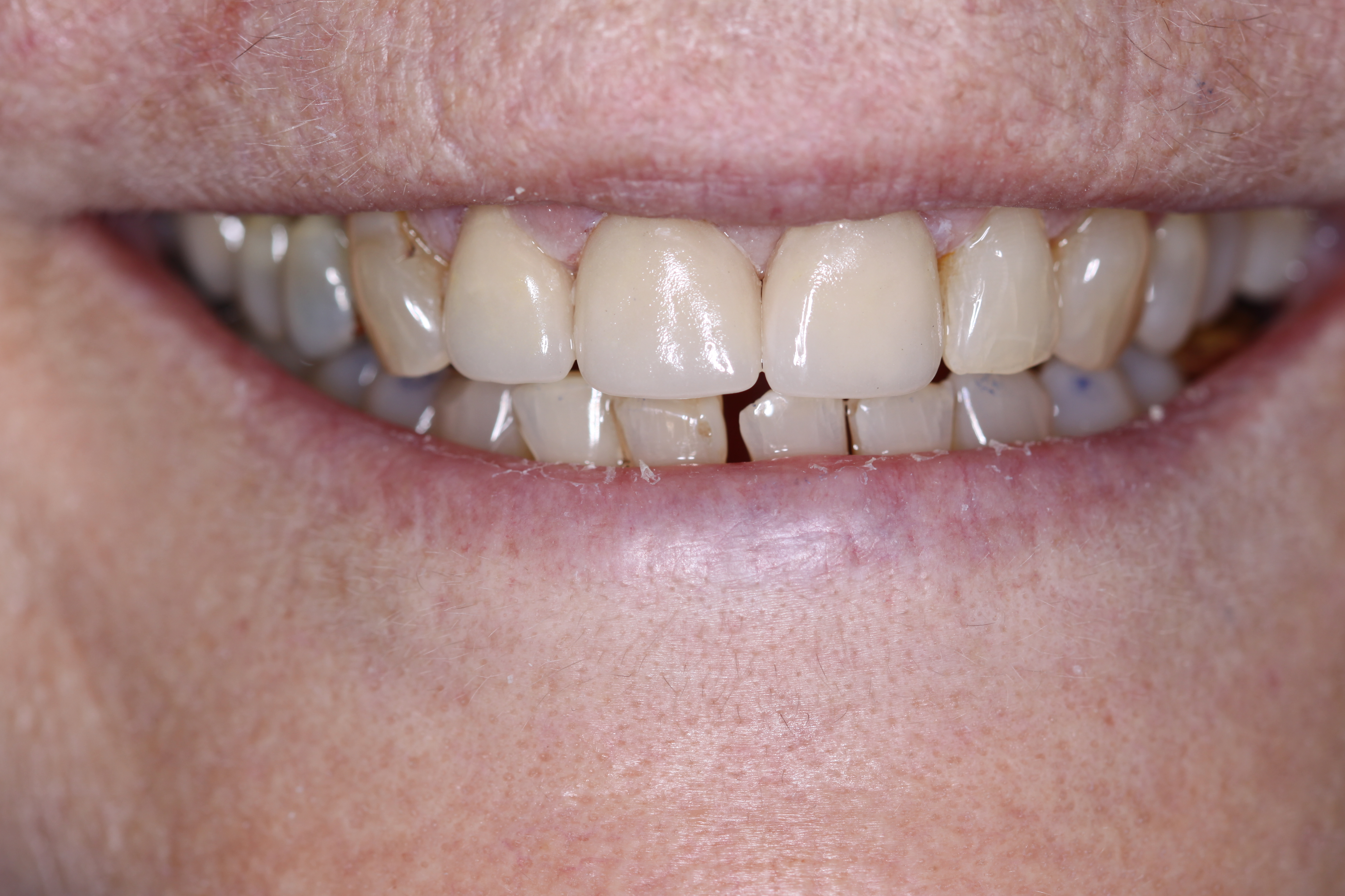 after photo of upper front teeth