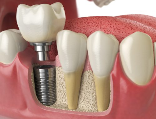 I Am Allergic to Titanium, Can I Get Dental Implants