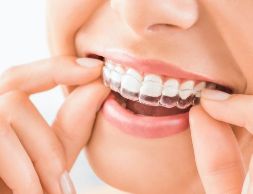 Are Invisalign Results Permanent? What You Need To Know